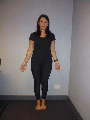 Nicole Calleja (before)