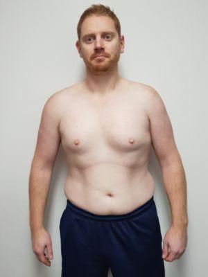 Ryan Smith (before)